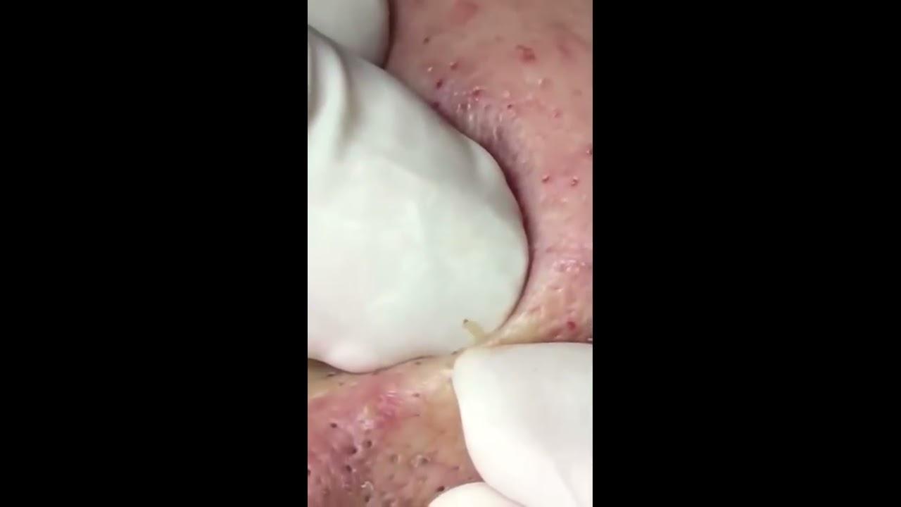 Remove Blackhead 2017 l Pimple popping 2017 l Zit popping 2017 l By Gersd Said