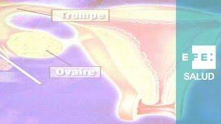 Las sorpresas del cáncer de ovario