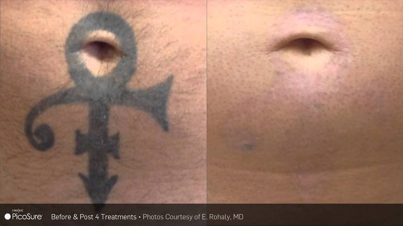 before after removal using picosure