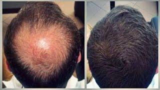 How to stop  hair loss - 100% Working | চুল পড়া রোধে সেরা সমাধান - ১০০% কার্যকরী