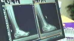 hqdefault - Wearing High Heels Back Pain