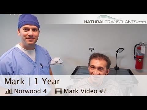 Hair Transplant 1 Year Followup   Dr. Harold Siegel - Natural Transplants Florida (Mark)