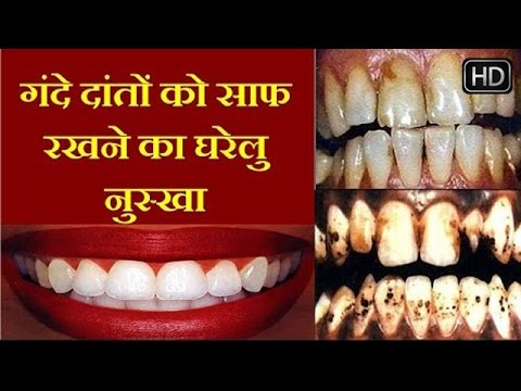 Image result for दांतों पर जमी सारी मैल