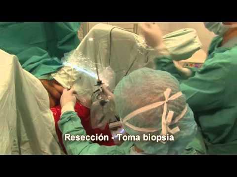 evaporación de la cirugía de próstata