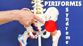 Piriformis Test & Simple Treatment That Works; Everything You Need to Know!
