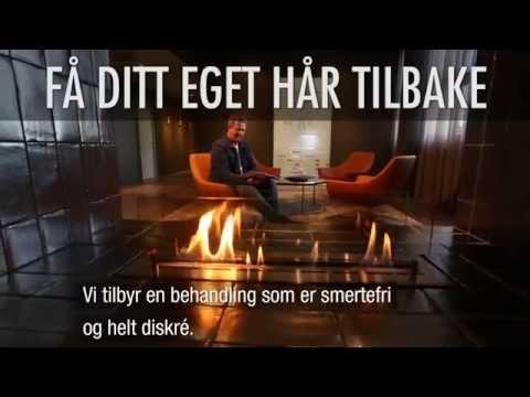 Hårtransplantasjon - Hårtap - Håravfall - Mister Hår