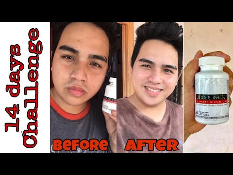 LUXXE WHITE ENHANCE GLUTATHIONE 2 WEEKS AFTER | REVIEW FROM DAVAO CITY