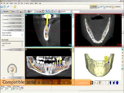 3D Implantologie mit Simplant und Universal Guide/Live OP Dr. Frank Spiegelberg
