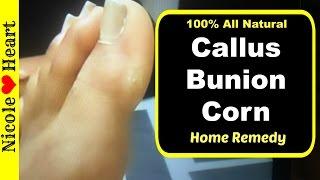 Remedy for Callus, Bunion, or Corn | Nicole Heart