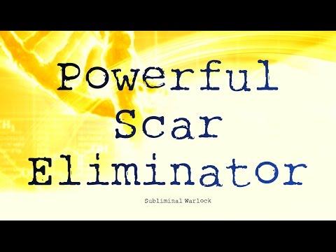Remove Scars (Any Type) Subliminals Frequencies Hypnosis Rife Biokinesis Binaural Beats