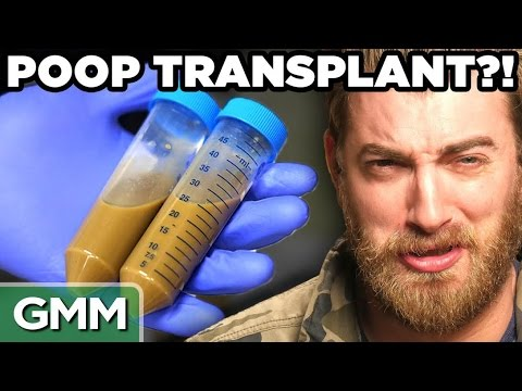 5 Ridiculous Human Transplant Stories