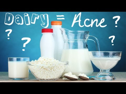 hqdefault - What Dairy Products Cause Acne