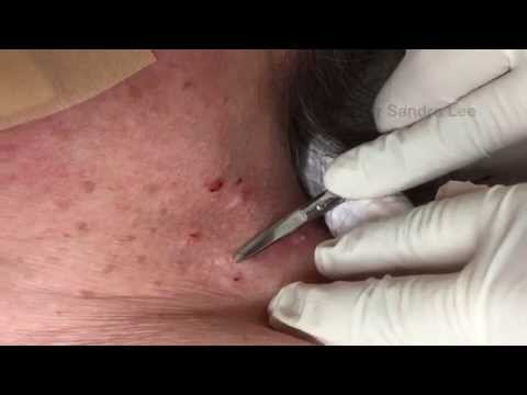 "Removing skin tags and ""wisdom spots"". For medical education- NSFE."