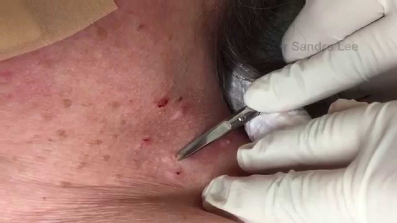 Best Dr Pimple Popper Skin Tag Videos Fans Must Watch