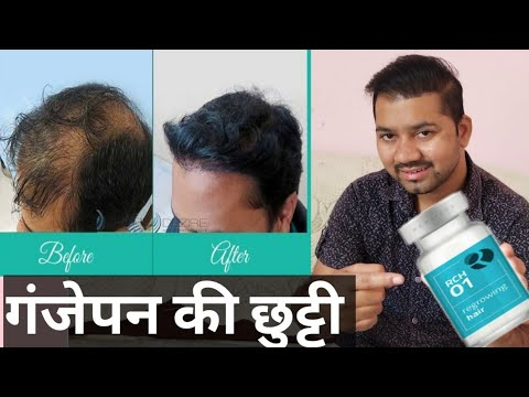 Replicel Rch 01 for baldness in india | Rch 01 in hindi complete  information by dr rajesh sokhal