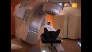 Radioterapia in Humanitas, a Milano un bisturi virtuale per i tumori del cervello