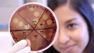 Dawn Bowdish Macrophage Evolution - Yung Lee - McMaster University thumbnail