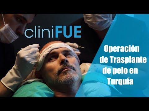 Tony, hermano de Jorge Aurelio de cliniFUE Experiencia de trasplante capilar en TURQUÍA