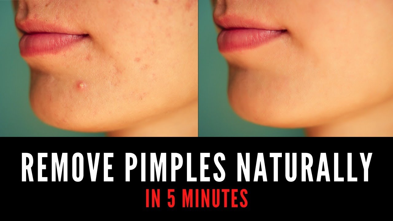 How To Remove Pimples Naturally At Home? | Remove Pimples