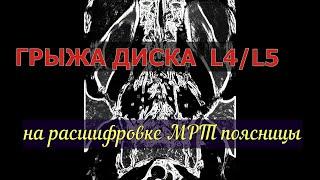 ГРЫЖА ДИСКА L4 L5 поясничного отдела позвоночника на МРТ расшифровке