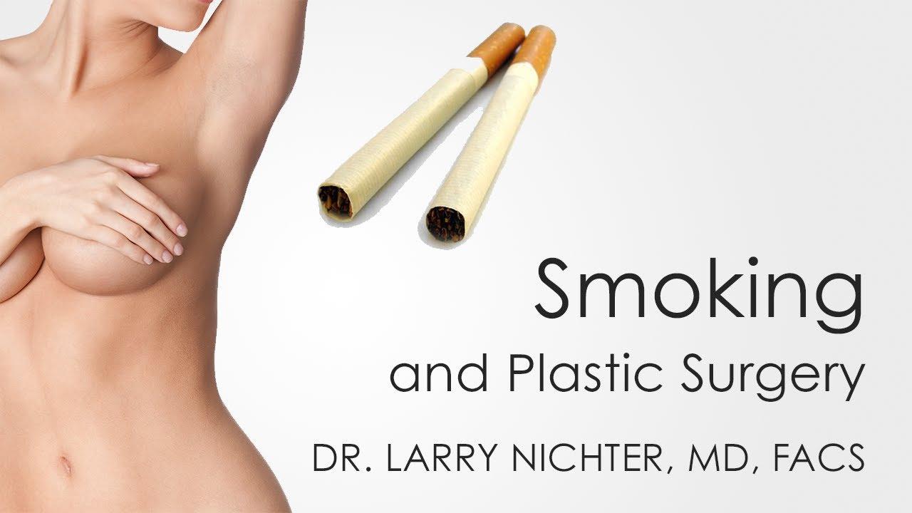larry nichter – Larry S  Nichter, MD, FACS