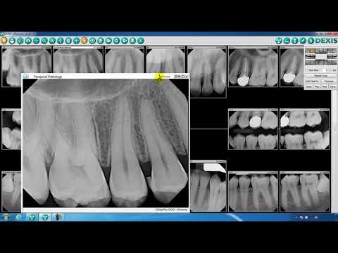 DEXIS™ Imaging Suite Image and Navigator Overview - YouTube