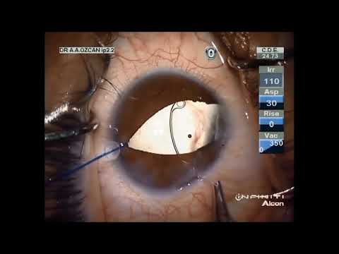 Management of cataract with congenital iris-lens coloboma