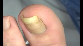 The smallest nail on earth