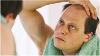 HOW TO PREVENT MALE HAIR LOSS