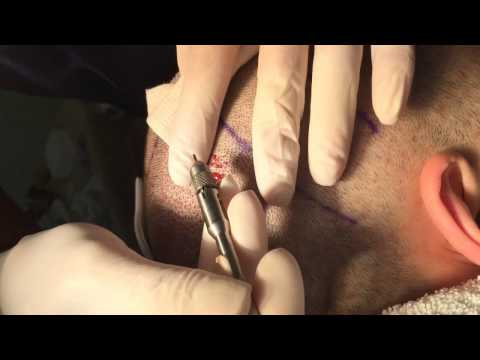 FUE Hair Transplant - Manual Extraction Demonstration