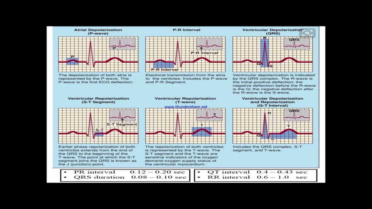 Normal and abnormal ECG - YouTube