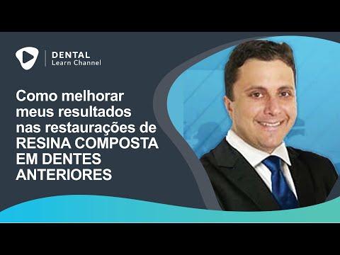 Como Melhorar Meus Resultados Nas Restaurações De Resina Composta Em Dentes Anteriores