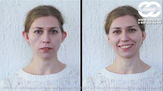 исправить уши без операции  корректор АРИЛИС отзывы