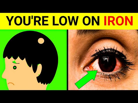 9 Signs You Have An Iron Deficiency || [signs and symptoms of iron deficiency]