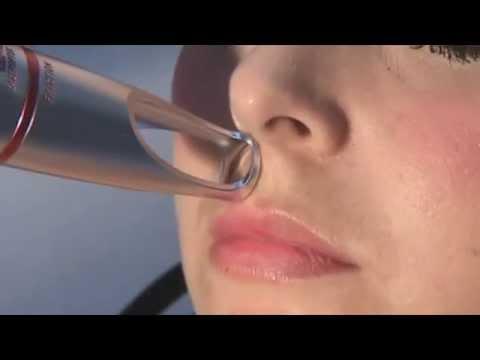 Hiperpigmentación pos inflamatoria en labio  - Tratamiento con láser Helios (15080)