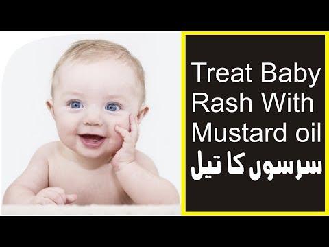 how to stop baby diaper skin rash home treatment rashes ka ilaj urdu hindi