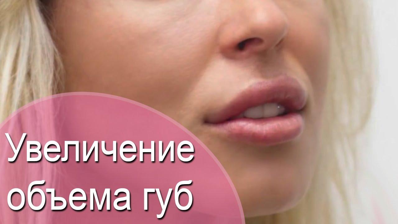 Препараты для увеличения губ на основе гиалуроновой кислоты