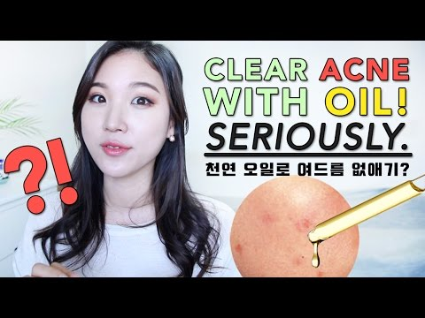 CLEAR ACNE WITH OIL! • BEST Oils for Acne Prone Skin