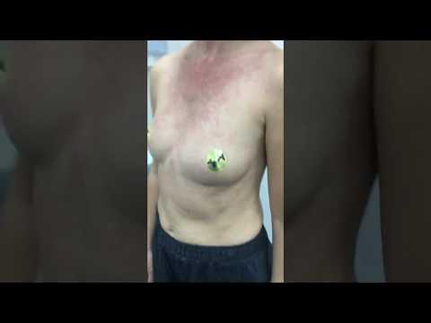 Грудь после удаления имплантатов через 12 лет ношения
