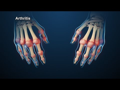 "review article rheumatoid arthritis Natural herbal treatment for rheumatoid arthritis -a review ""anti-inflammatory activity of pandanus odoratissimus extract,"" international journal of."