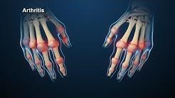 Rheumatoid Arthritis | Nucleus Health