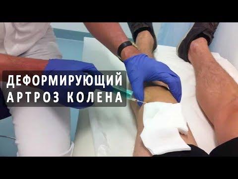 Как лечат деформирующий артроз коленного сустава?