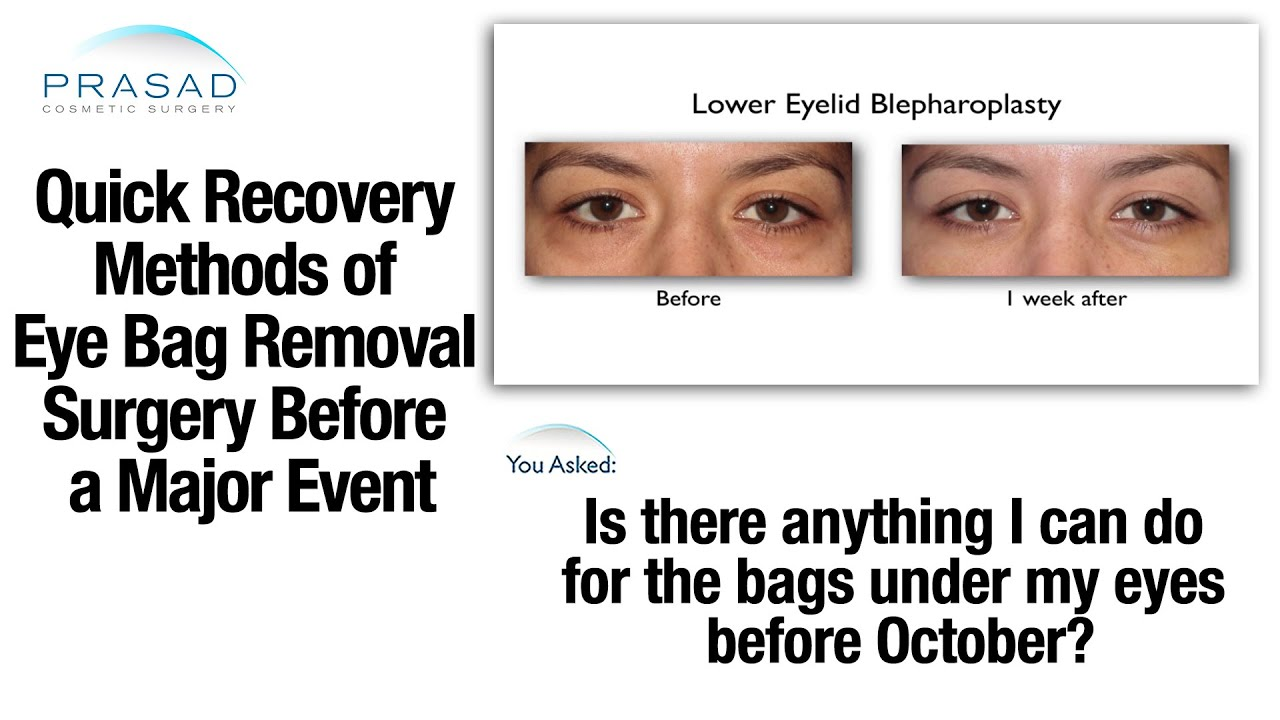 The Recovery After Procedure Rarely Involves More Than Some Slight Swelling And Bruising Dry Eyeinor Disfort