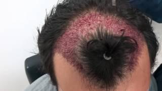 Temples Hair Transplant