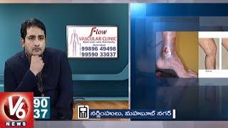 Varicose Veins Problem | Symptoms & Treatment | Dr. Abhilash | Good Health | V6 News