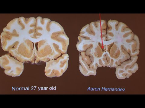 Researcher says Hernandez's brain was severely impacted by CTE