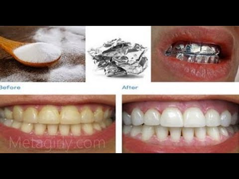 How To Whiten Teeth Instantly Naturally At Home Wrap Aluminium