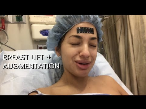 BREAST AUGMENTATION + LIFT (SURGERY DAY)