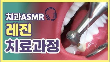 [치과의사의 ASMR]  레진 치료 이렇게 합니다 하나도 안무서워요~!🤗