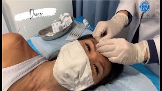 A Miracle Cure-All Treatment - Yong Kang TCM Clinic